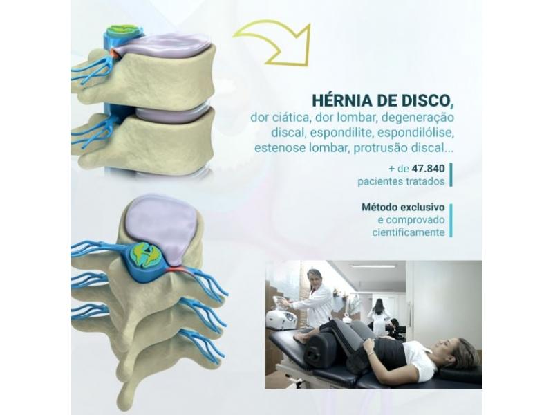 Osteopatia em Porto Velho - Osteo&Fit - Saúde Integral
