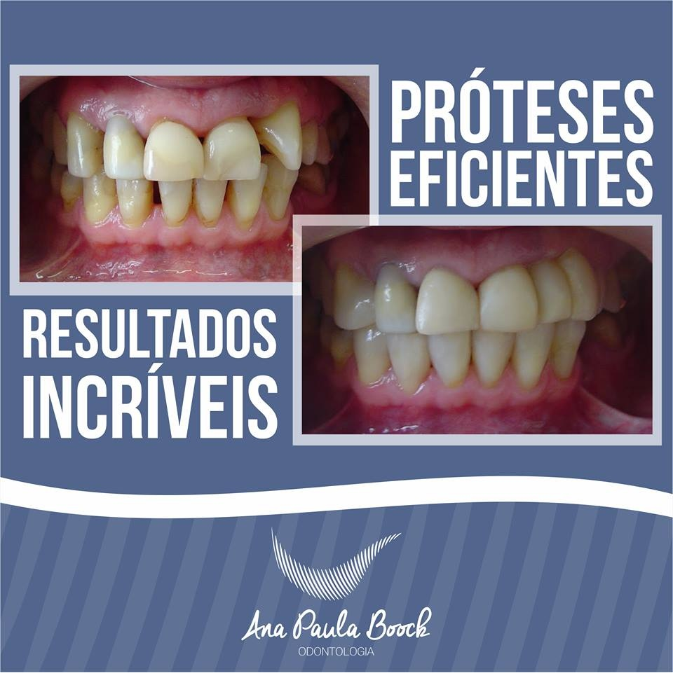 DR ANA PAULA BOOCK - PROTESES DENTARIAS EM POCOS DE CALDAS - MG