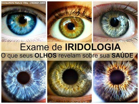 IRIDÓLOGO IRIDOLOGIA EM VOLTA REDONDA RJ